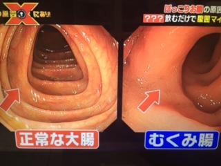 その原因、Xにあり!むくみ腸 画像