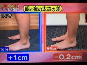 その原因、Xにあり!足のむくみ